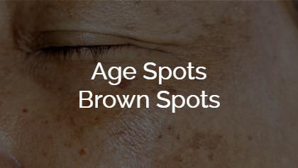 Age Spots - Brown Spots