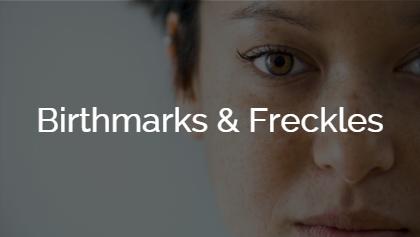 Birthmarks & Freckles