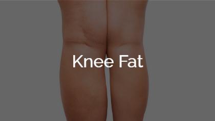 Knee Fat