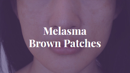Melasma - Brown Patches