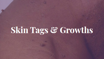 Skin Tags & Growths